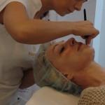 Plazma terapie pro krásnou pleť – unikátní novinka